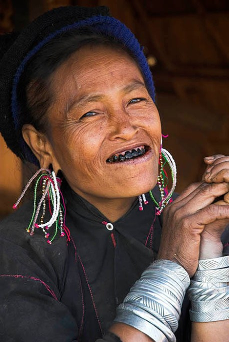 Eng tribal woman, outside Kengtung ( Kyaingtong ), Eastern Shan State, Burma ( Myanmar ). Her deliberately blackened teeth are considered a mark of beauty.
